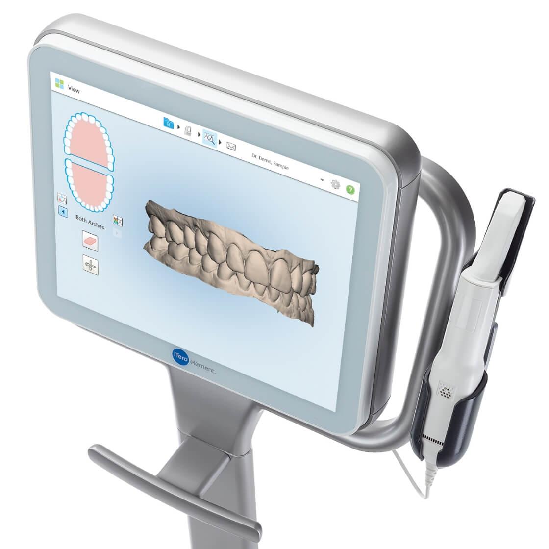 便利な3Dスキャナー「iTero Element (アイテロ エレメント)」を導入