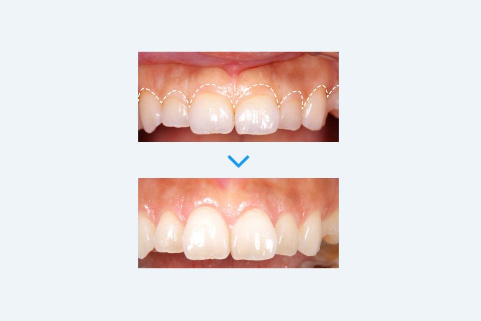 歯肉(歯ぐき)切除による治療