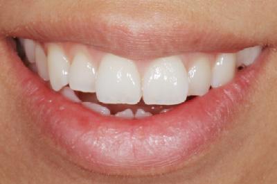 症例2  歯肉(歯ぐき)切除により治療をした症例