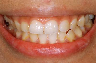 症例3  歯肉(歯ぐき)切除により治療をした症例